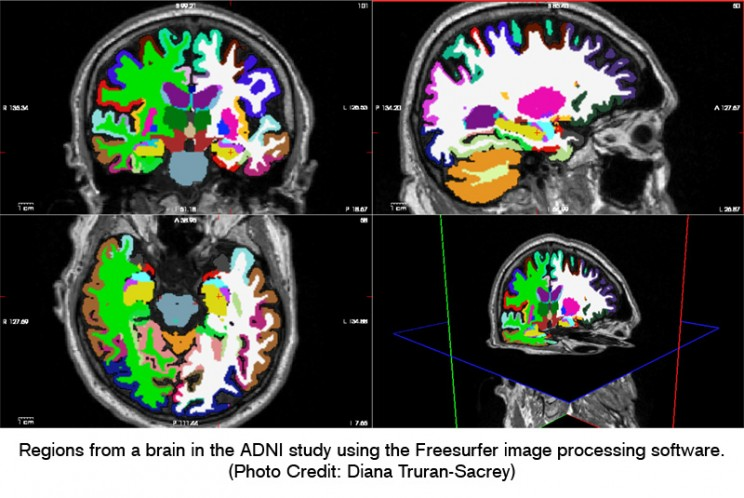 Regions from a brain in the ADNI study using the Freesurfer image processing software